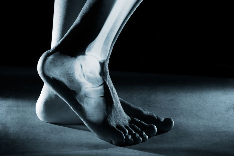 No More Ugly Feet, by Moira de Groot