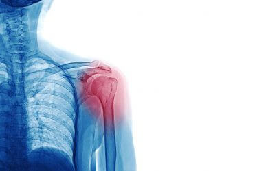 Shoulder dislocation +/- fracture, a common skiing injury