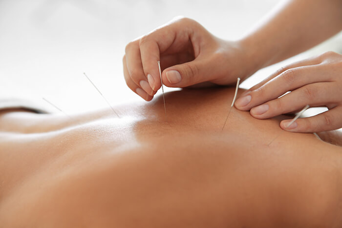 Acupuncture as part of your Physiotherapy or Chiropractic treatment